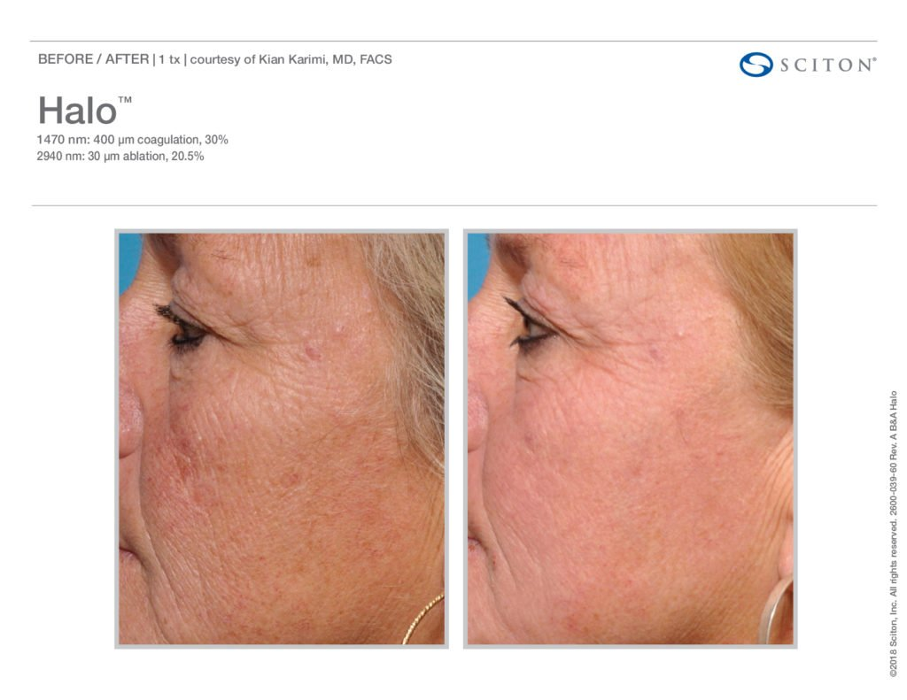 Halo Laser Resurfacing before after 1