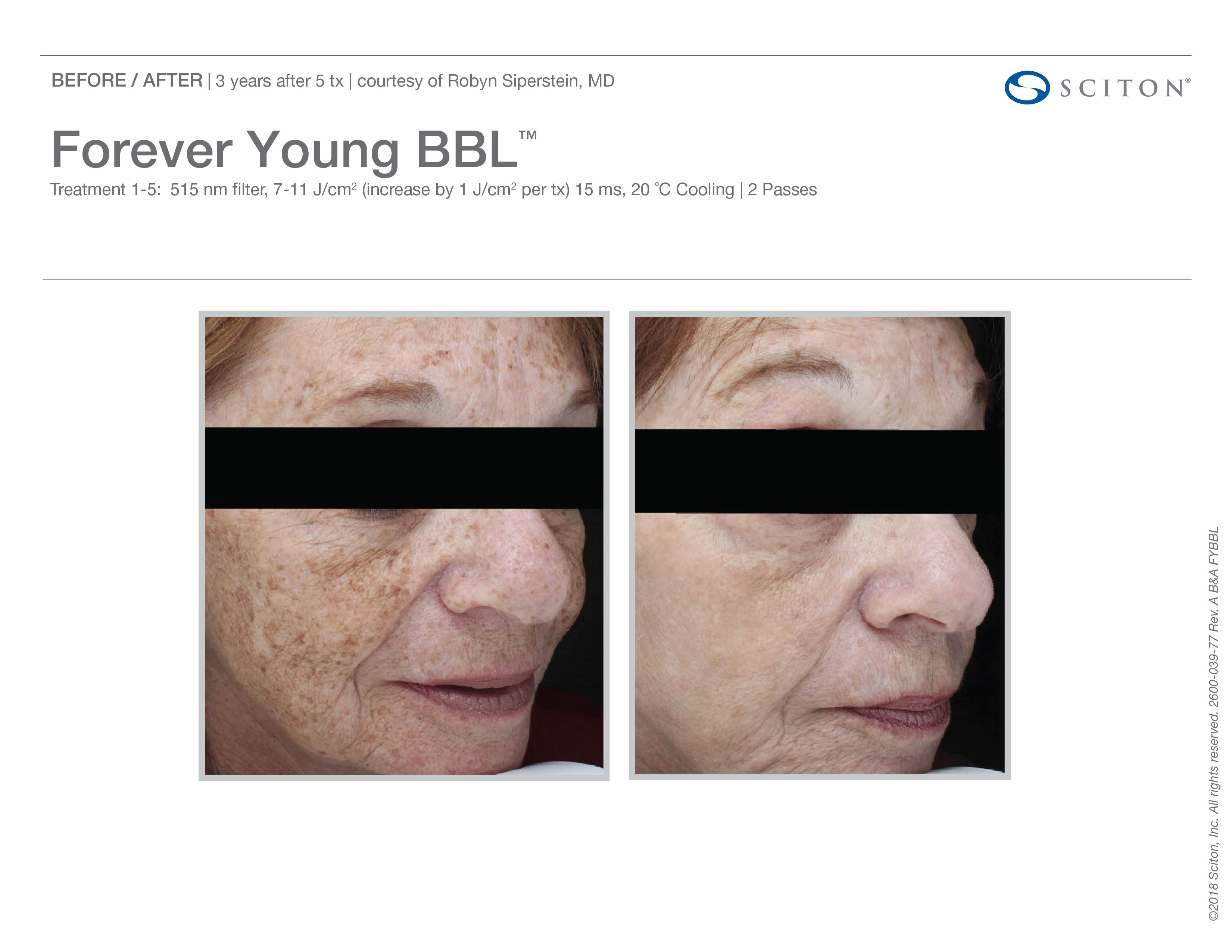 FYBBL-before-after-photo-1