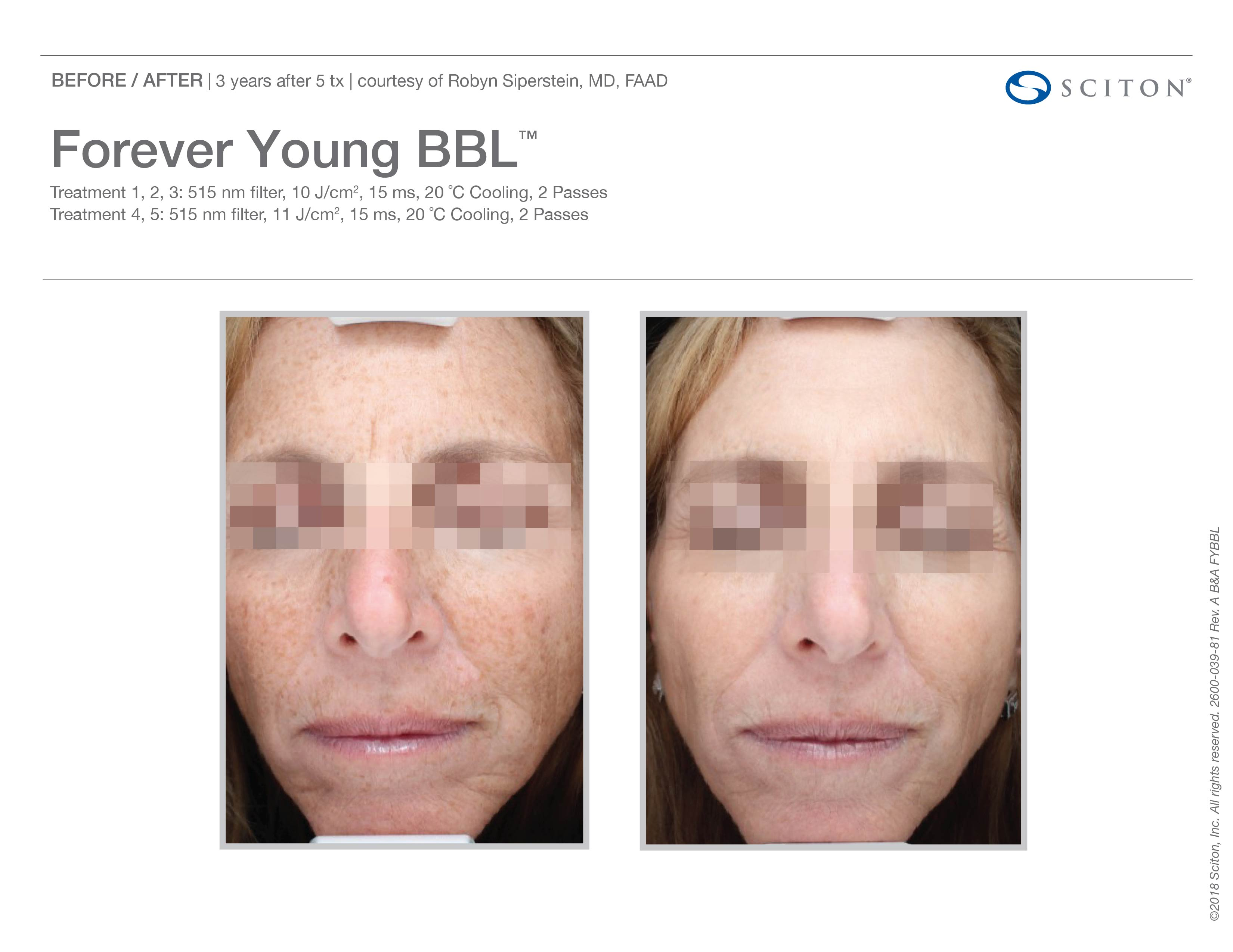 FYBBL-before-after-photo-2