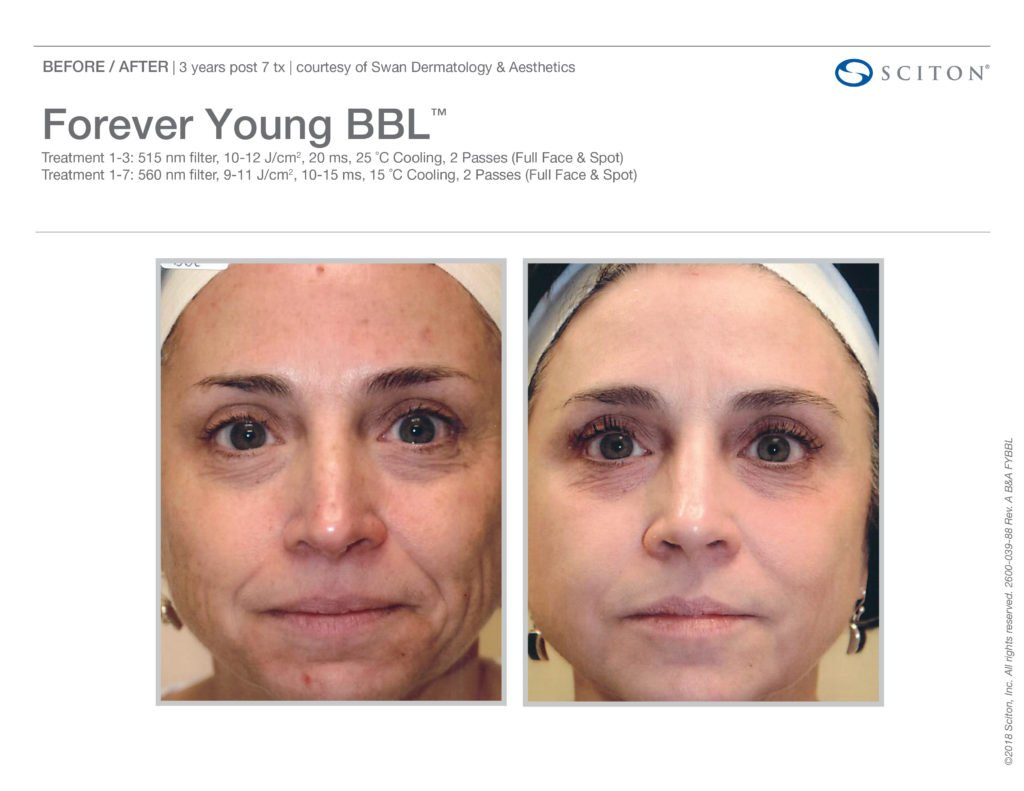 FYBBL-before-after-photo-4