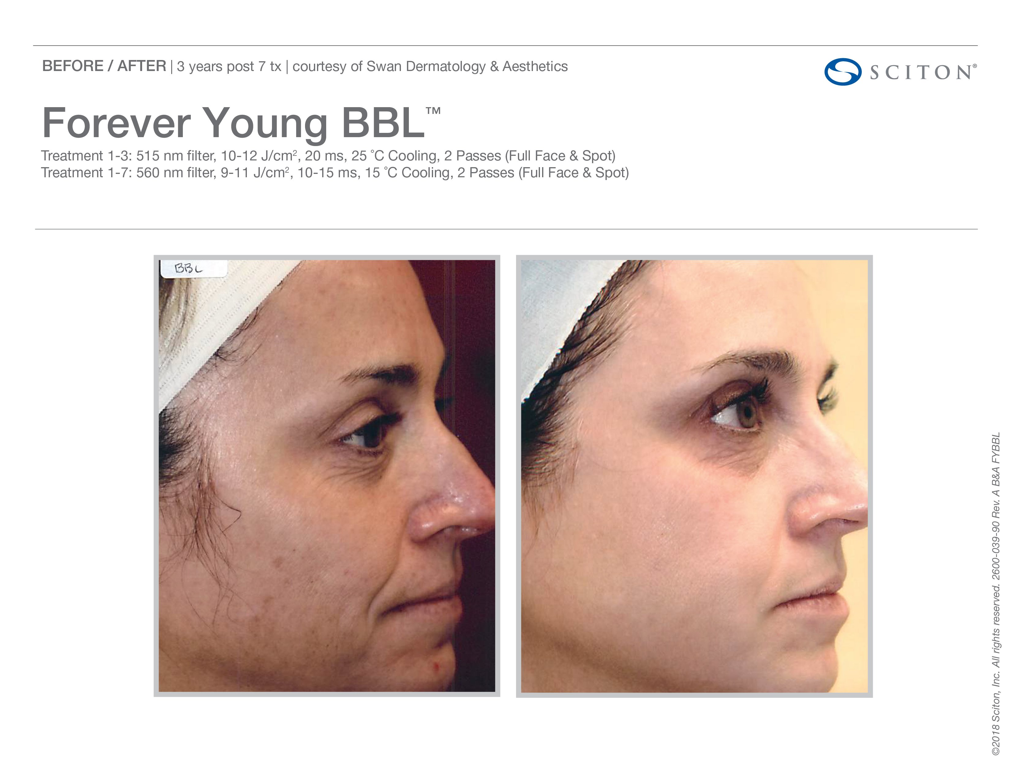FYBBL-before-after-photo-9
