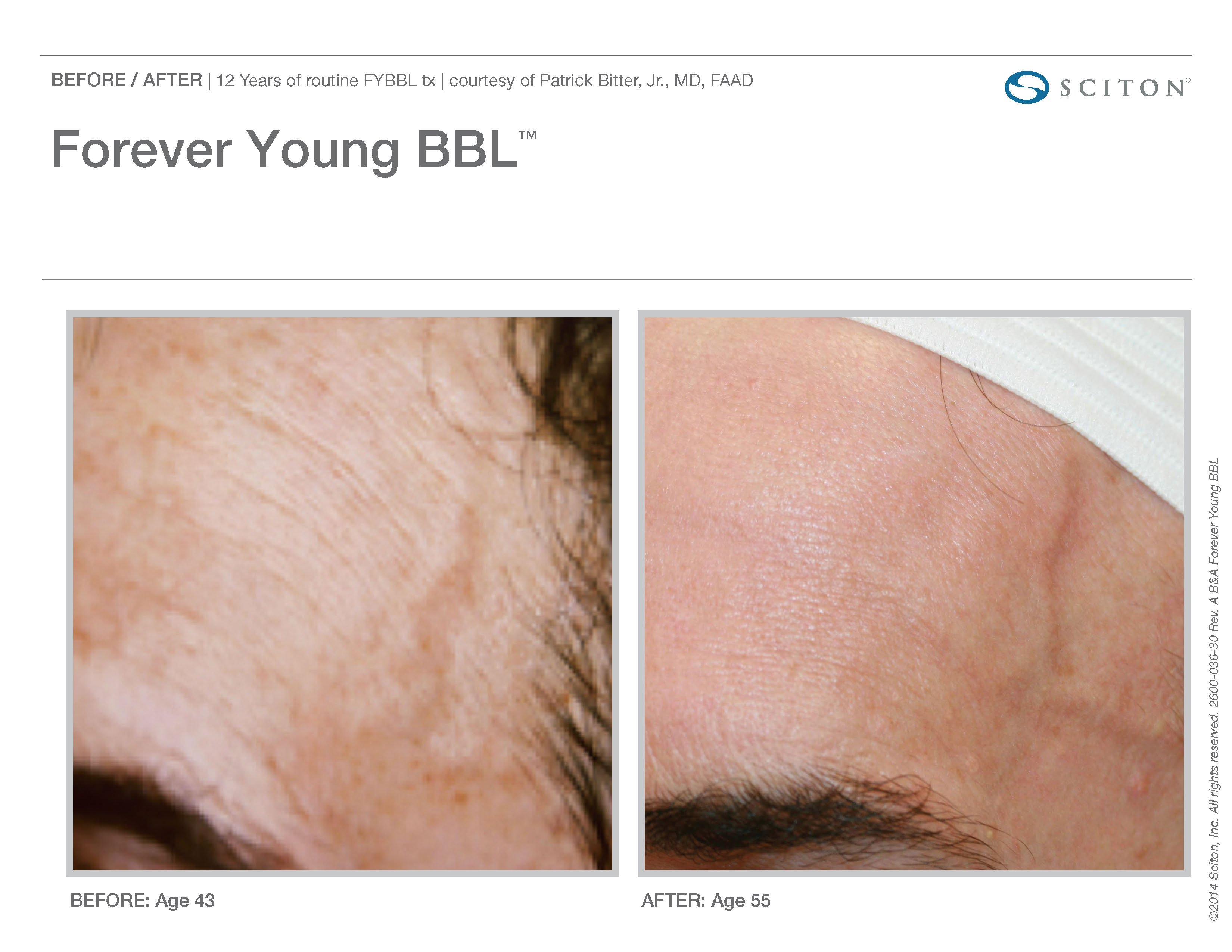 FYBBL-before-after-photo-5