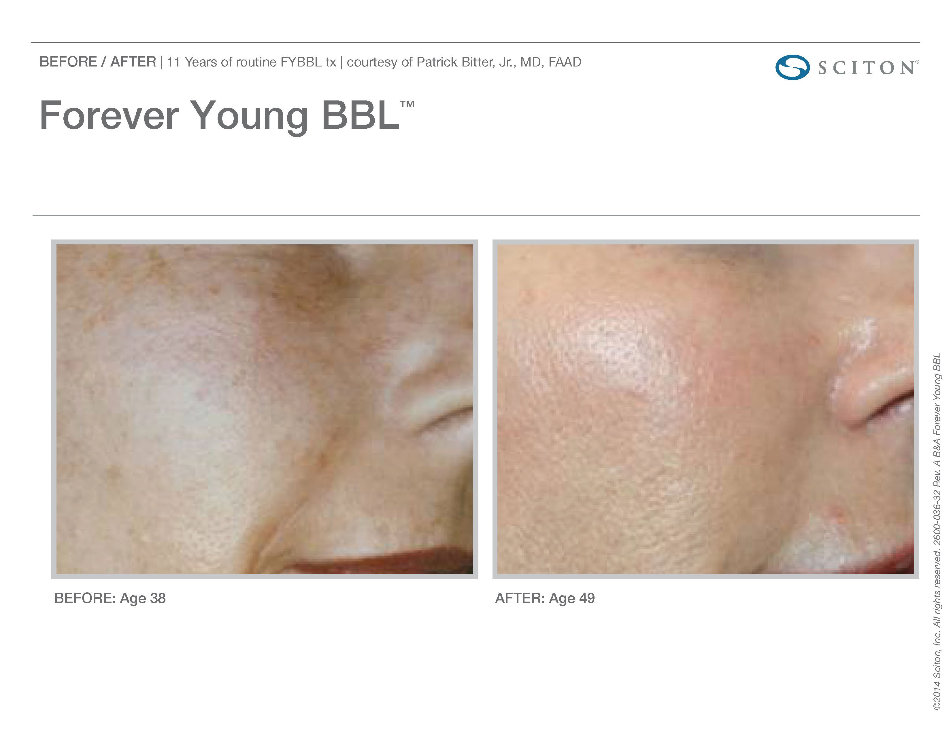 FYBBL-before-after-photo-6