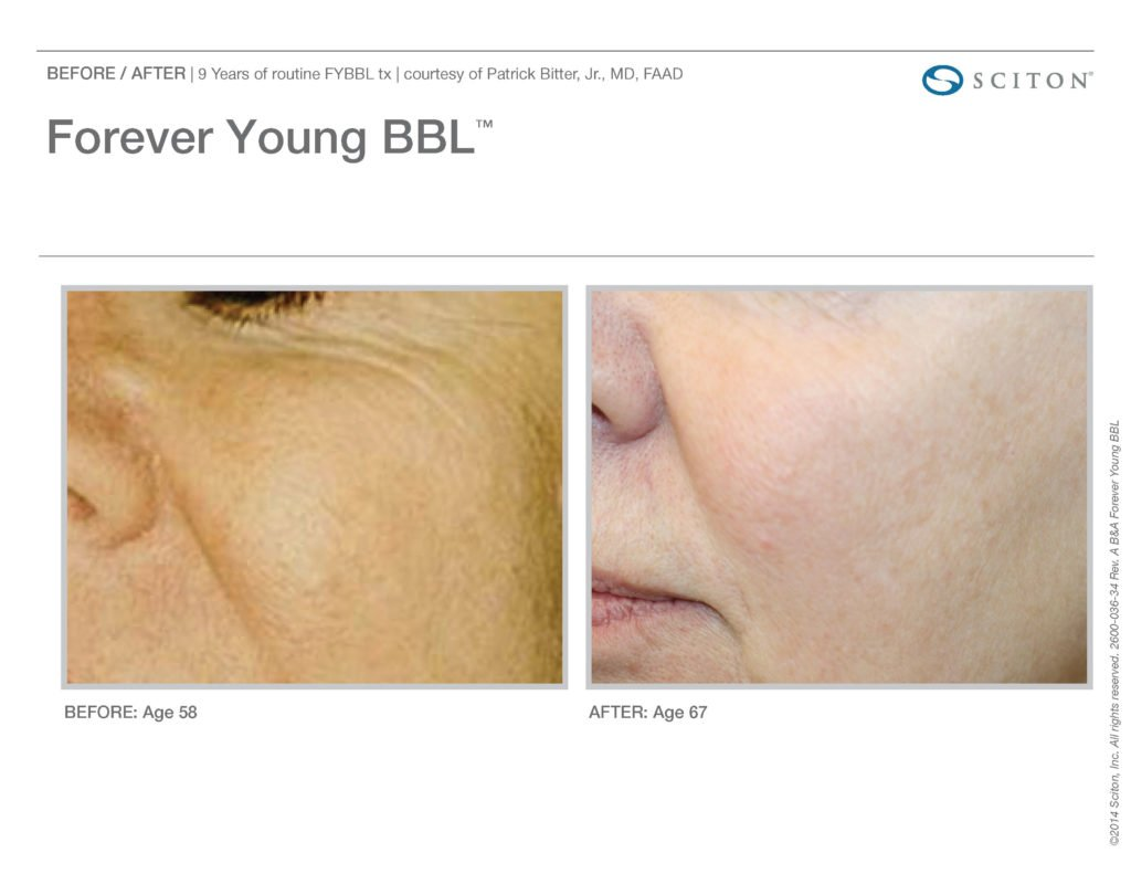 FYBBL-before-after-photo-7