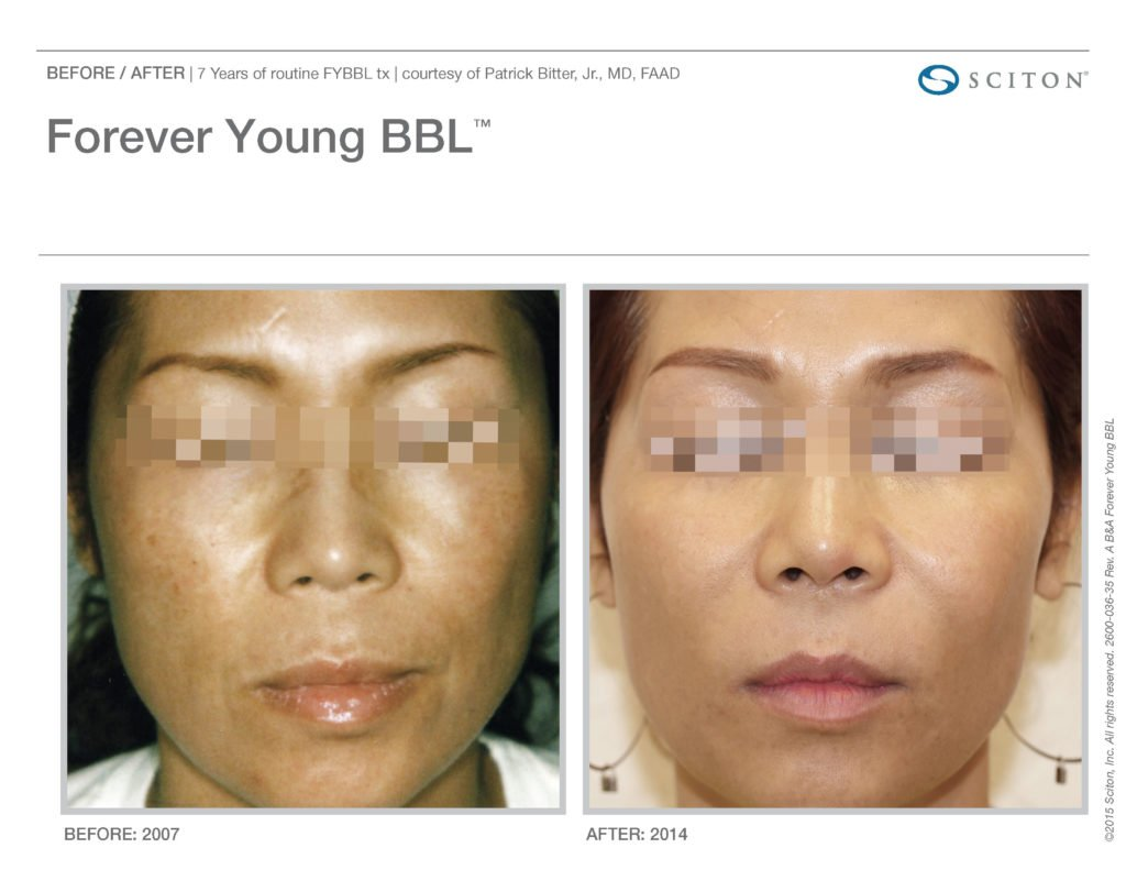 FYBBL-before-after-photo-8