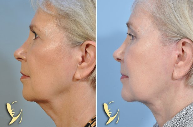 Facelift-Browlift-Chin-2