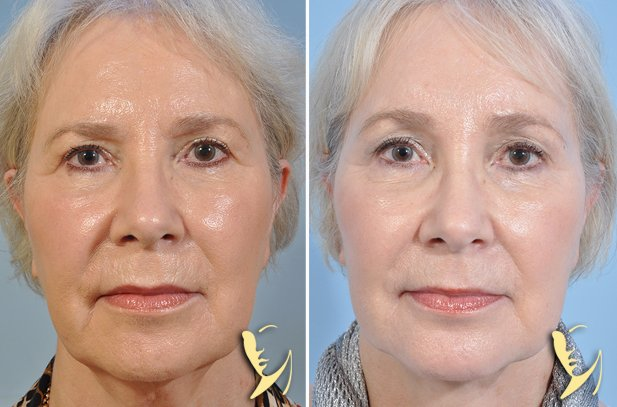 Facelift-Browlift-Chin