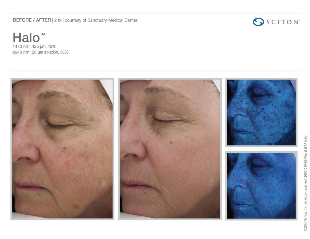 Halo Laser Resurfacing before after 2