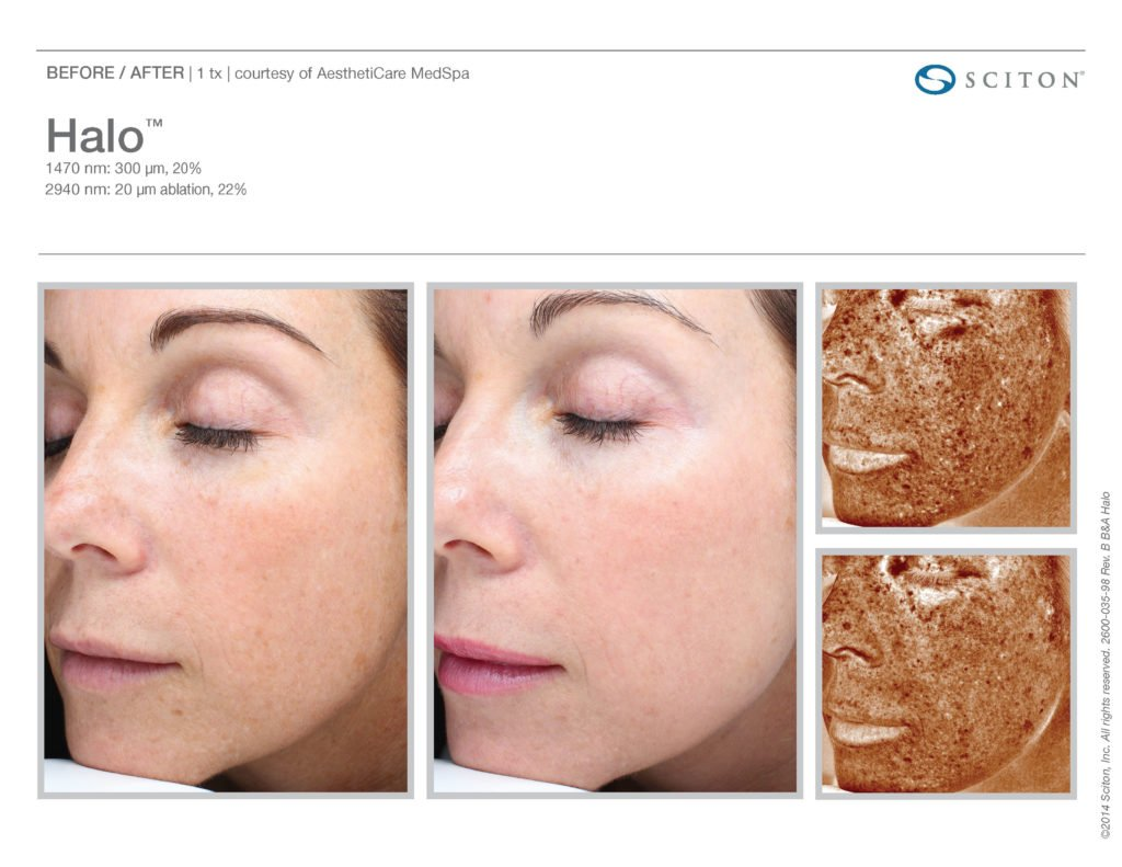 Halo Laser Resurfacing before after 4