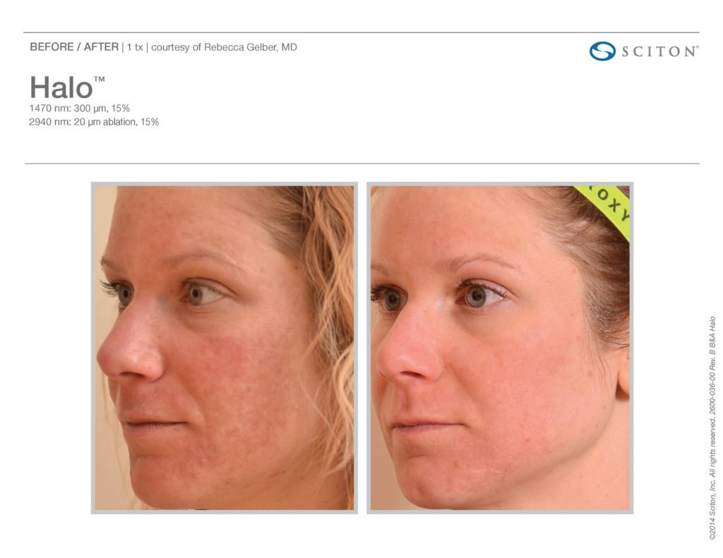 Halo Laser Resurfacing before after 5