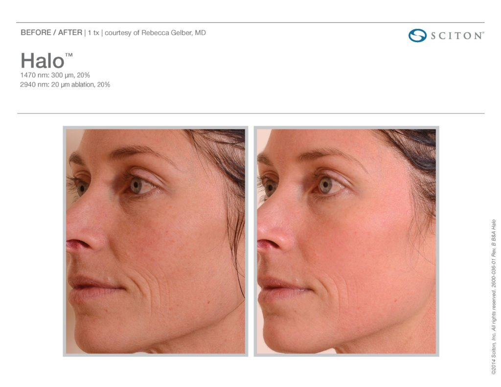 Halo Laser Resurfacing before after 6