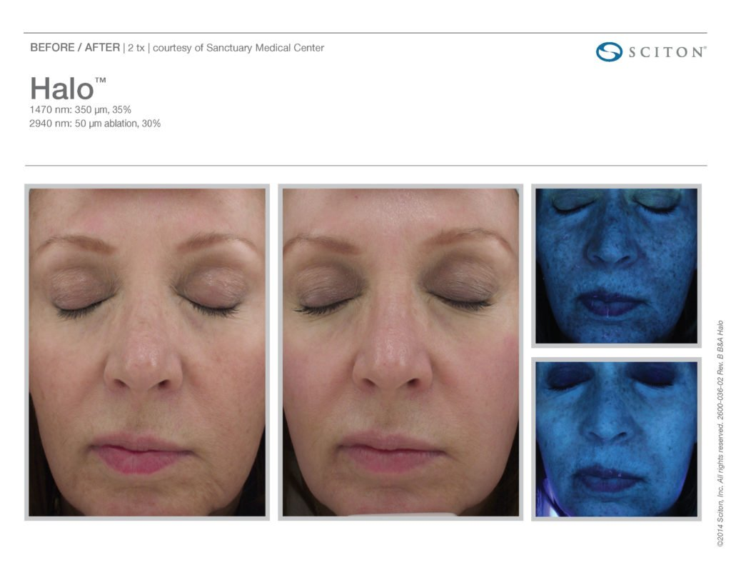 Halo Laser Resurfacing before after 7
