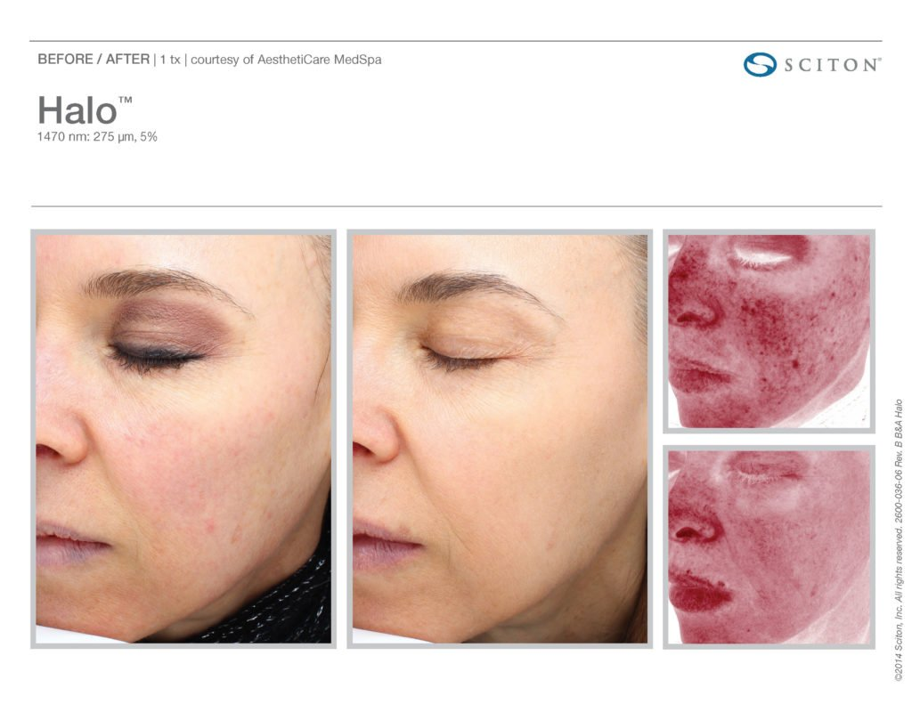 Halo Laser Resurfacing before after 8