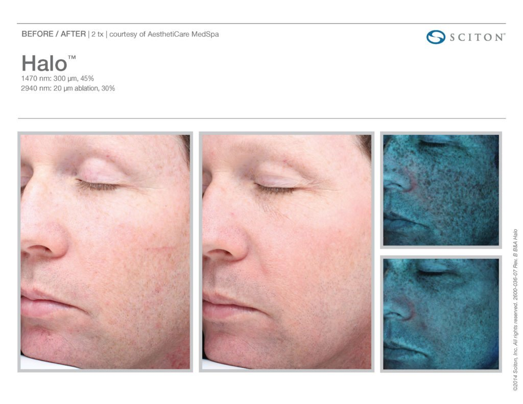Halo Laser Resurfacing before after 9