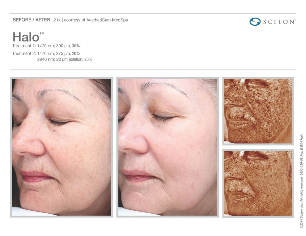 Halo Laser Resurfacing before after 10