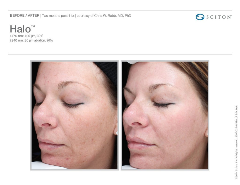 Halo Laser Resurfacing before after 11