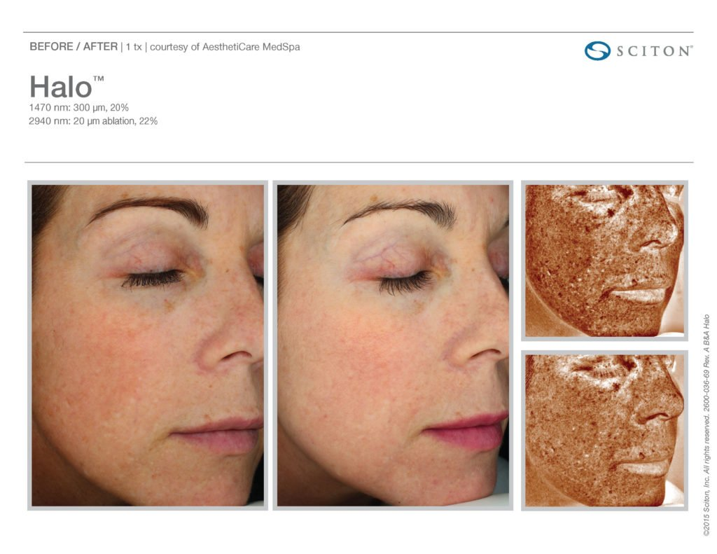 Halo Laser Resurfacing before after 12