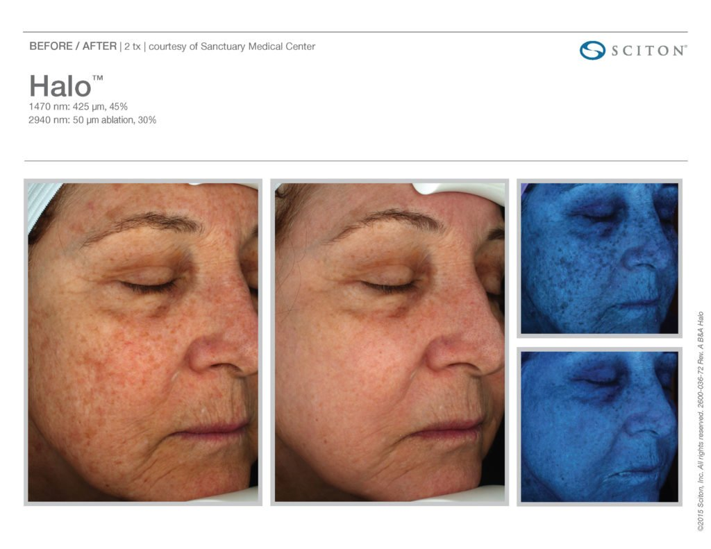Halo Laser Resurfacing before after 13