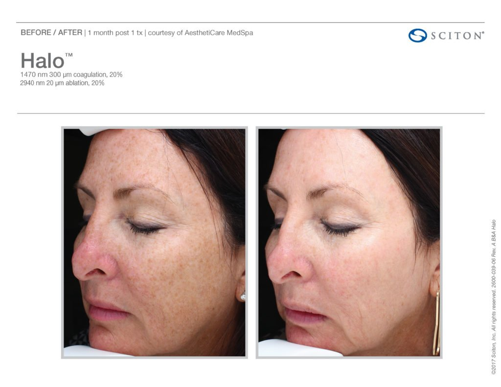 Halo Laser Resurfacing before after 14