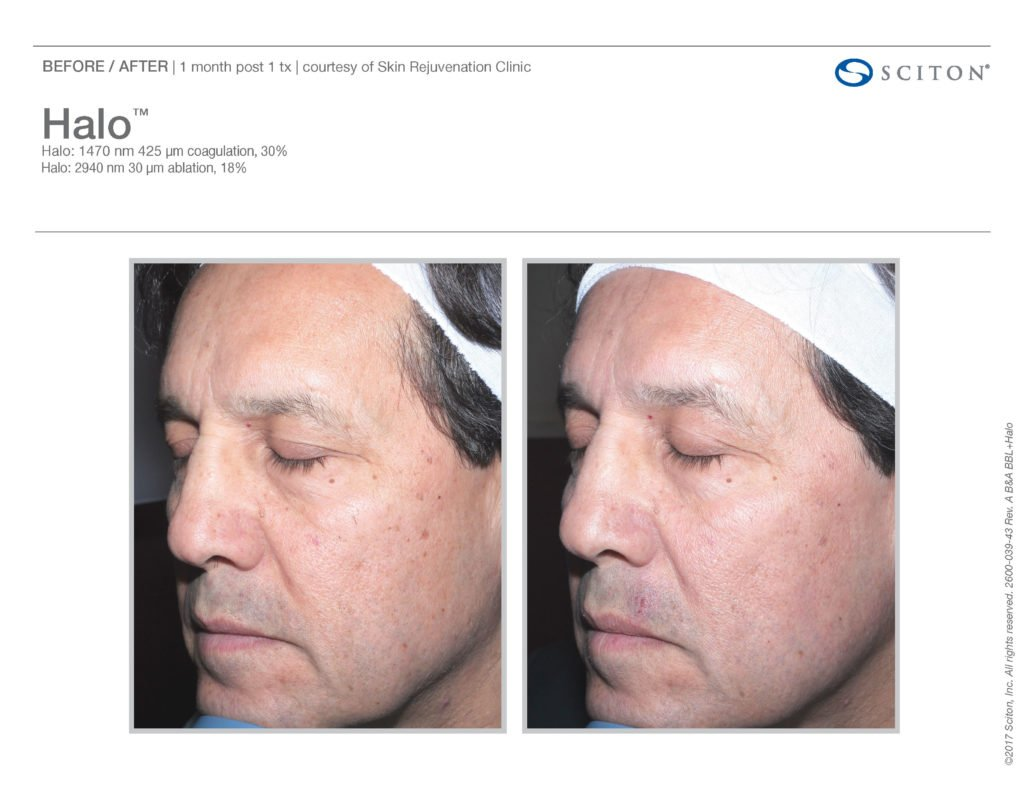 Halo Laser Resurfacing before after 15