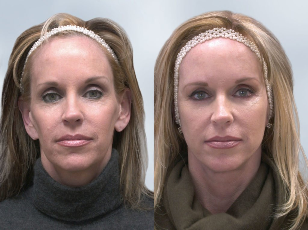 Sculptra Before and After 3
