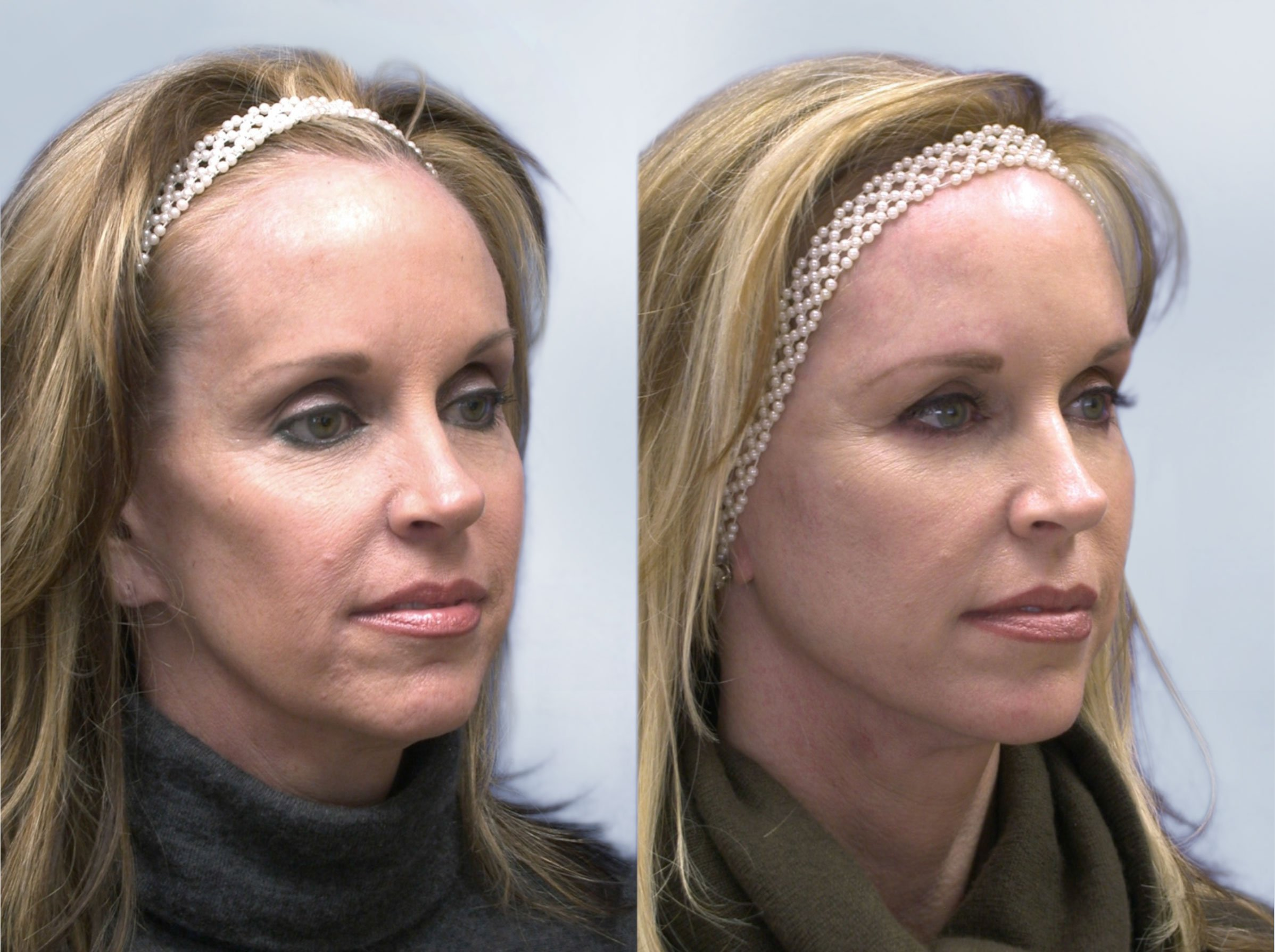 Sculptra Before and After 4