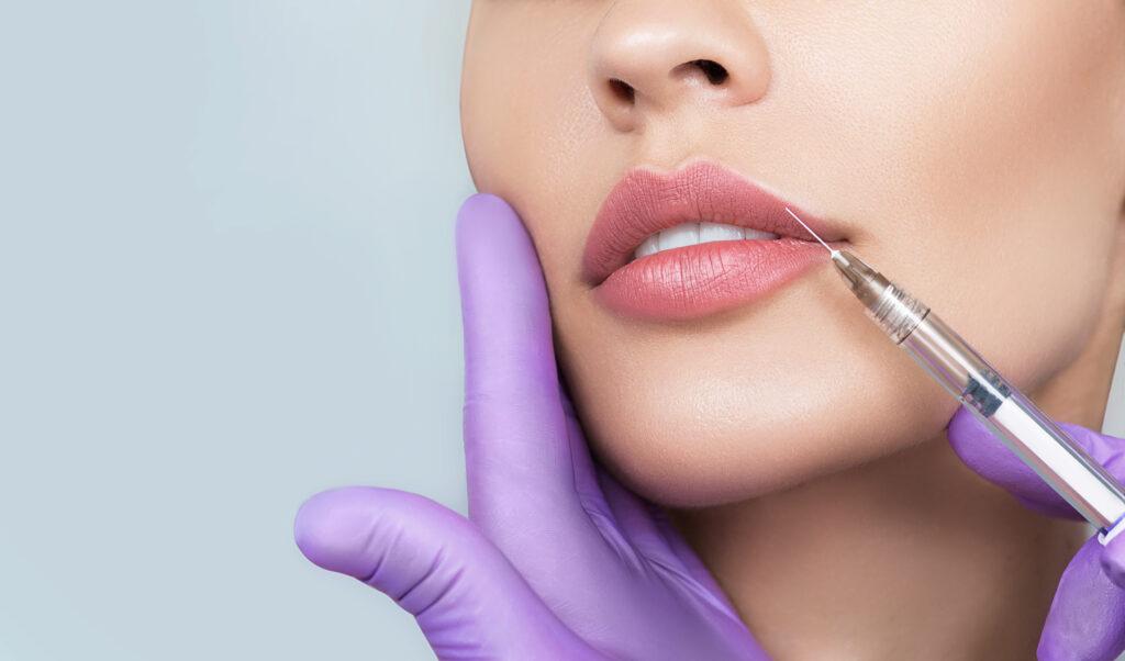 Cropped sensual female lips, procedure lip augmentation.
