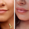Lip-Enhancement-3