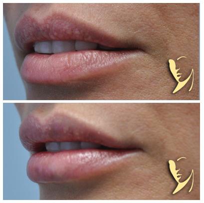 Lip-Enhancement-Kysse-2