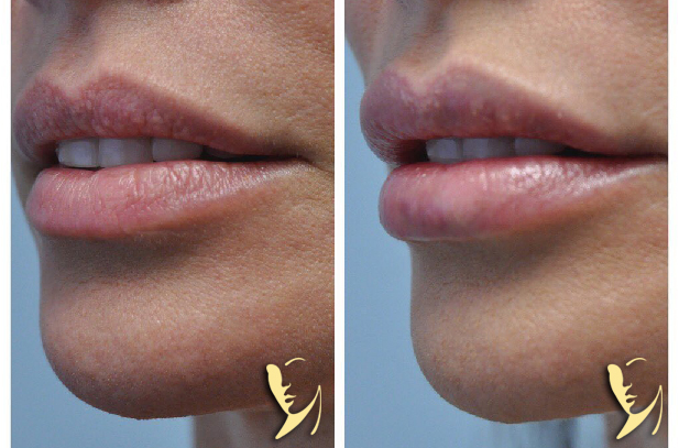 Lip-Enhancement-Kysse