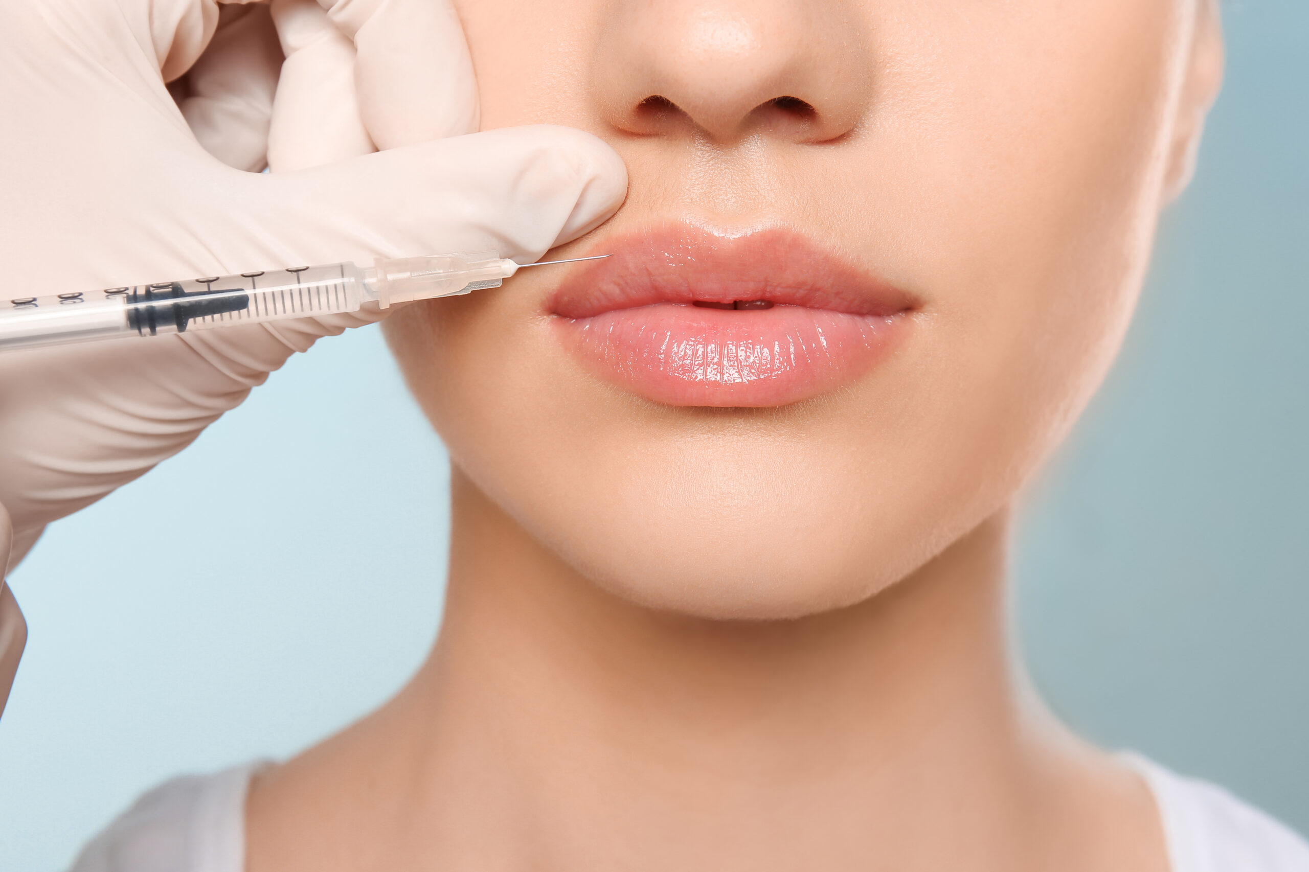 lip filler image