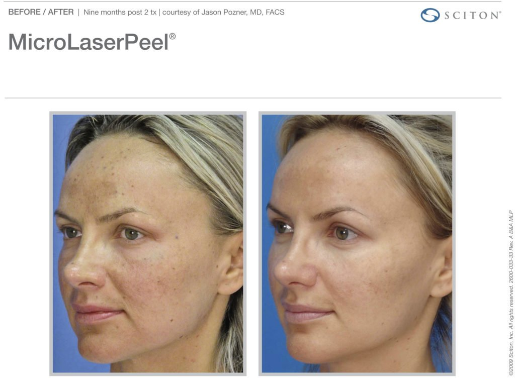 micro-laser-peel-before-after-8