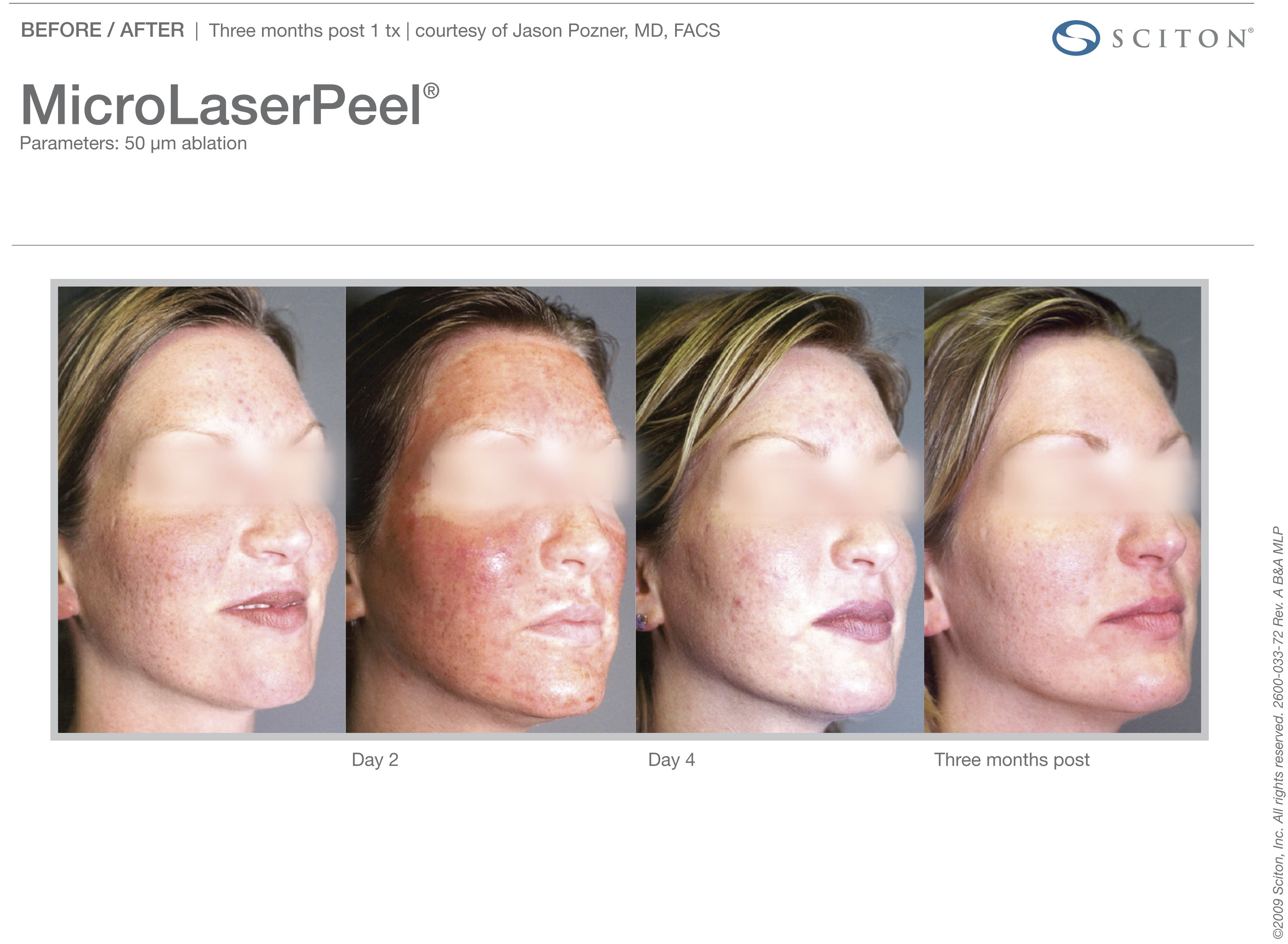 micro-laser-peel-before-after-7