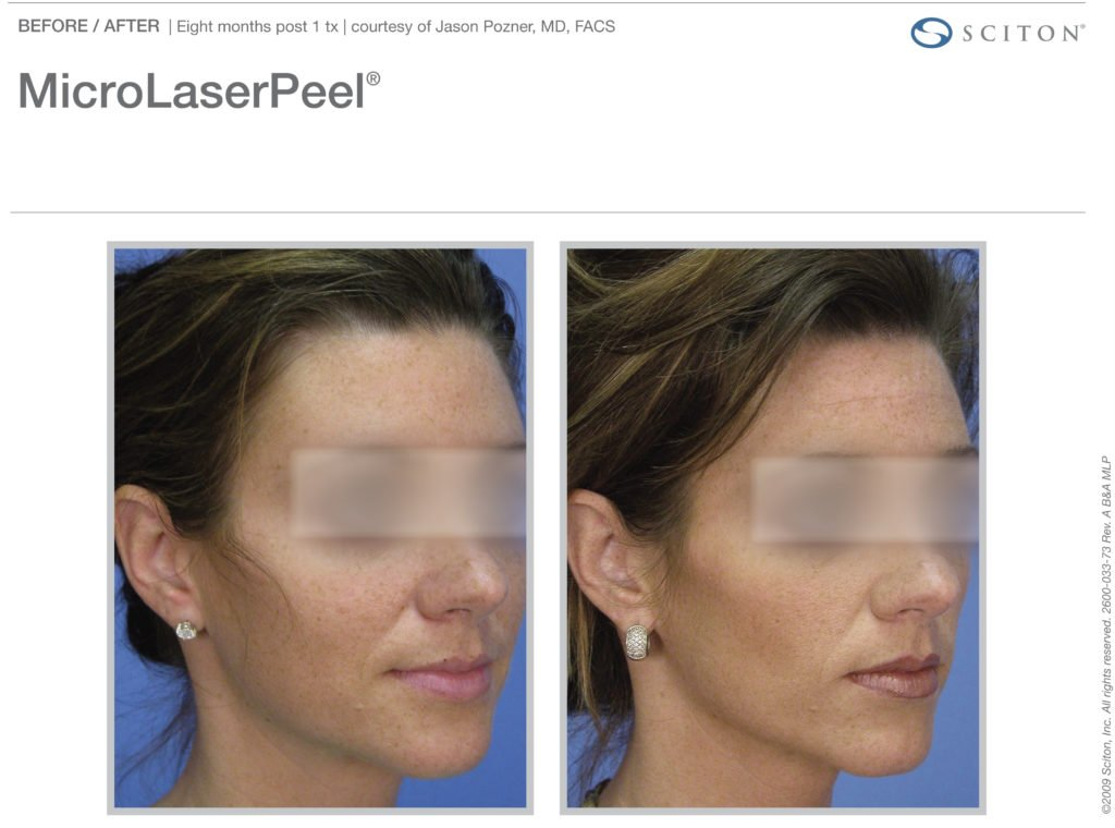 micro-laser-peel-before-after-6