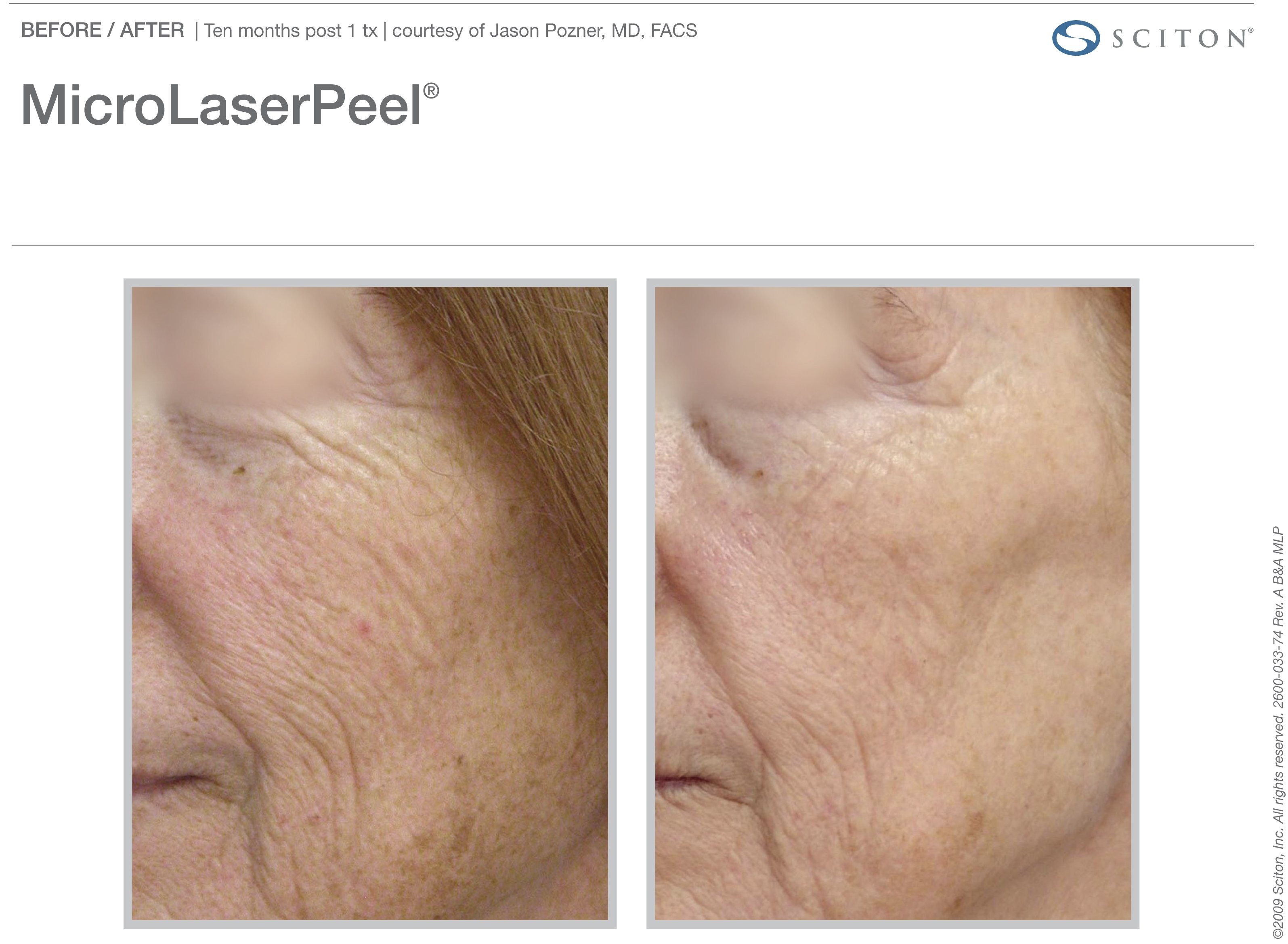 micro-laser-peel-before-after-5