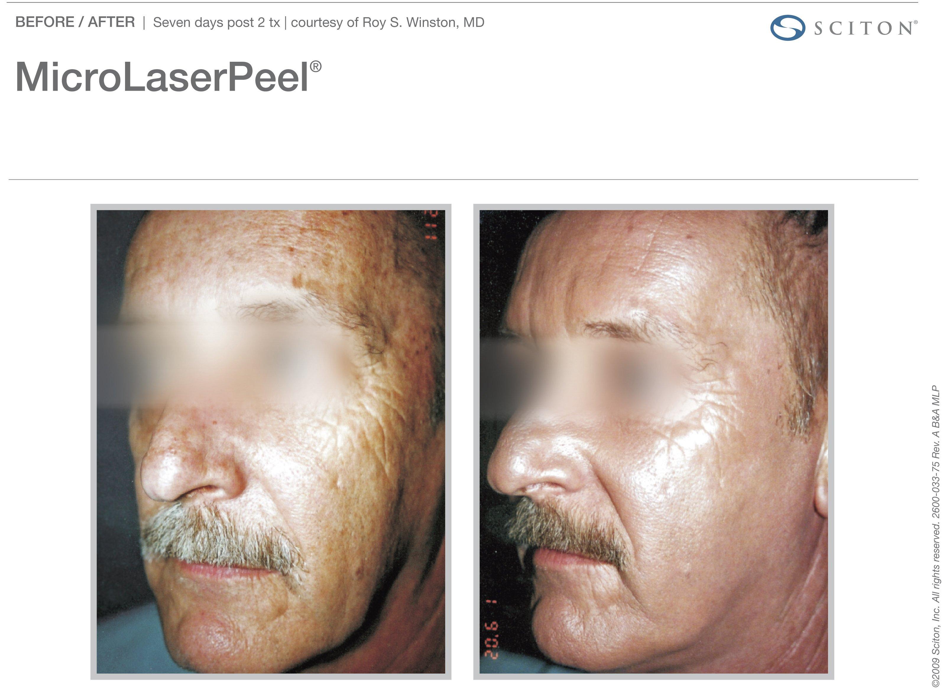 micro-laser-peel-before-after-4