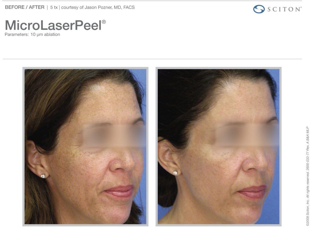 micro-laser-peel-before-after-3