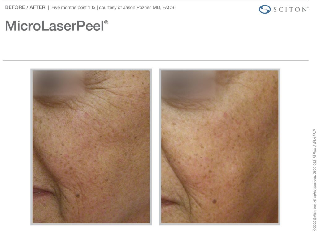 micro-laser-peel-before-after-2