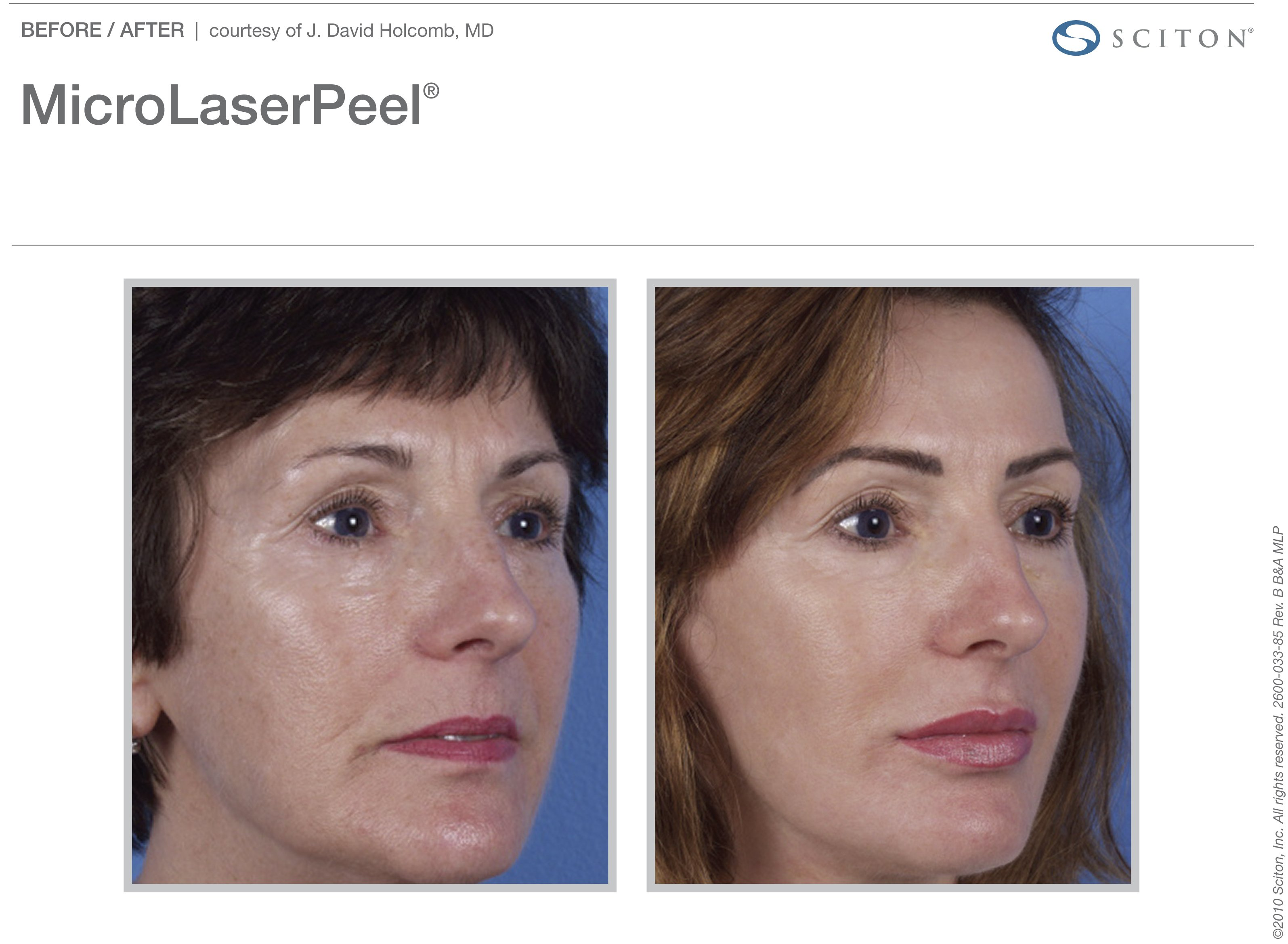 micro-laser-peel-before-after-1