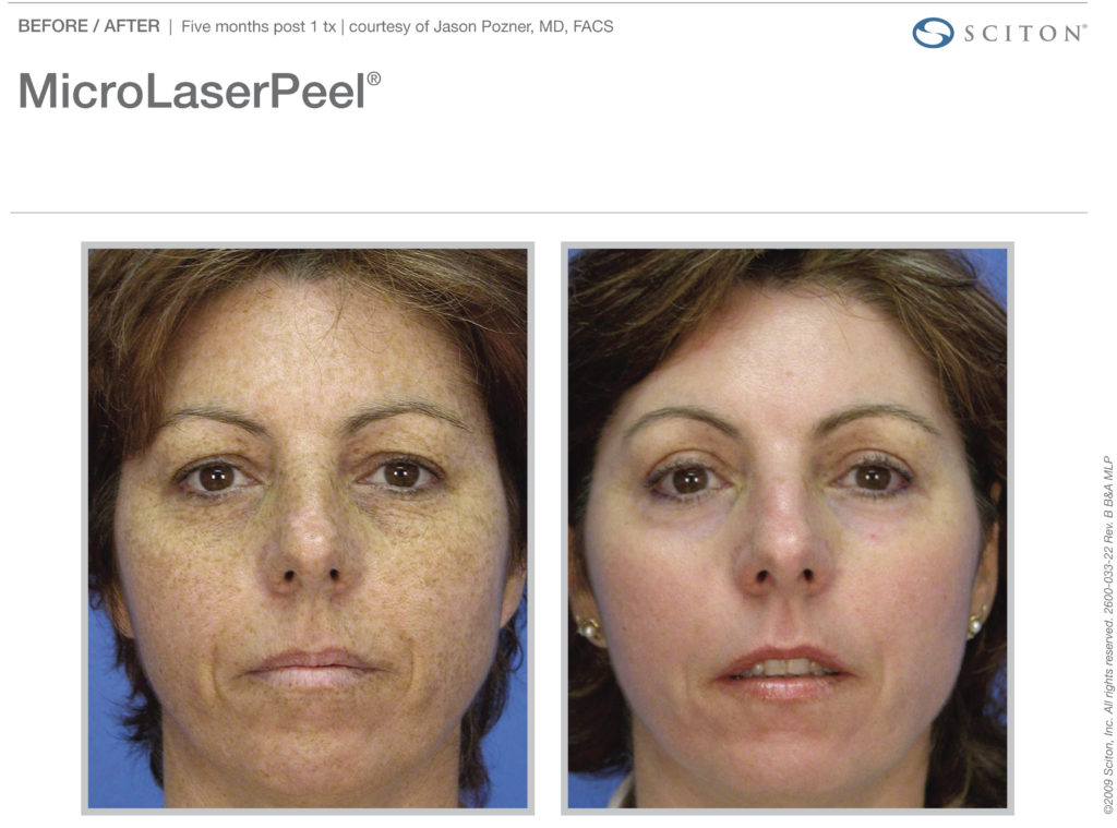 MicroLaserPeel-before-after