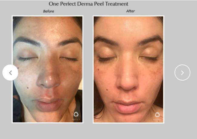 Perfect-Derma-Peel-2