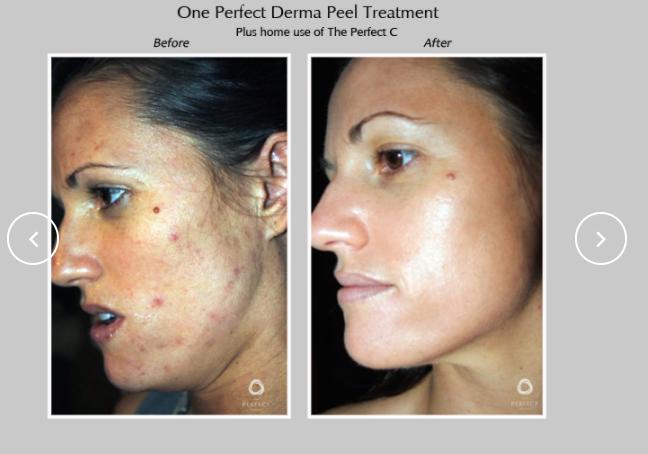 Perfect-Derma-Peel-3