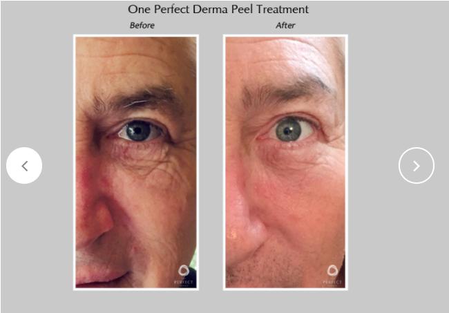 Perfect-Derma-Peel-4