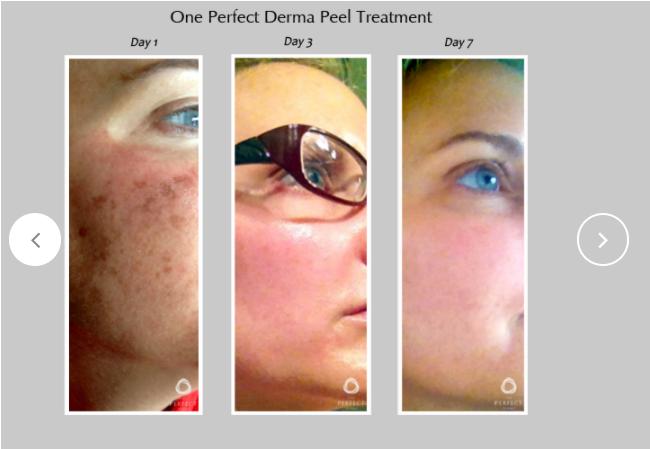 Perfect-Derma-Peel-5