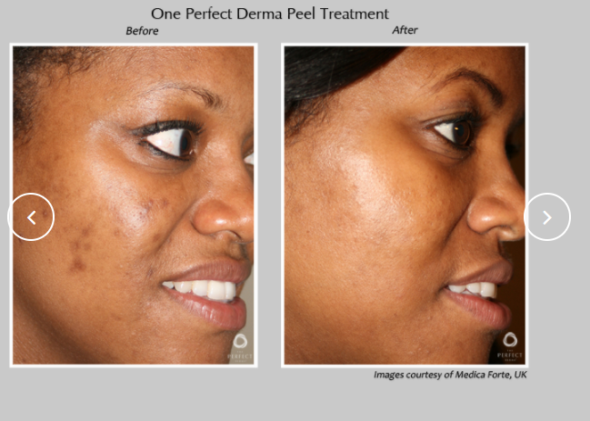 Perfect-Derma-Peel-6