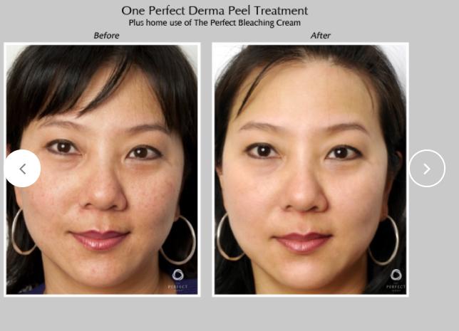 Perfect-Derma-Peel-7