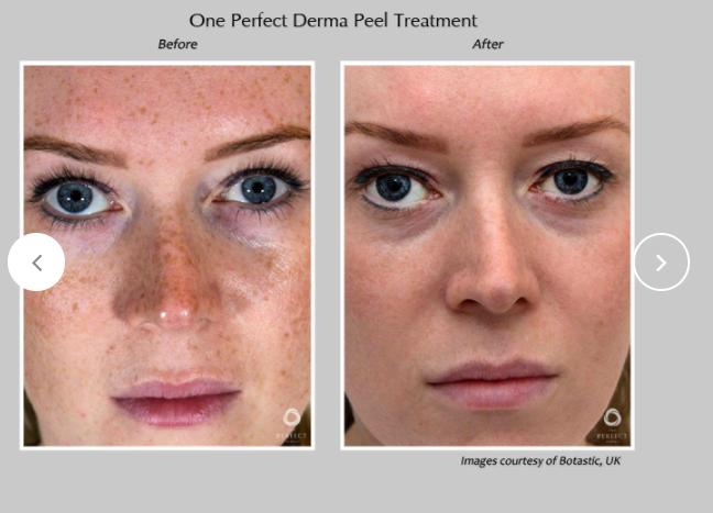 Perfect-Derma-Peel-9