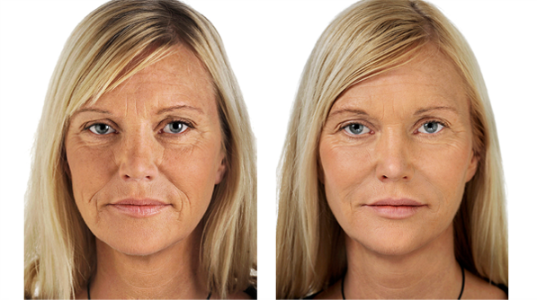 facial rejuvenation image