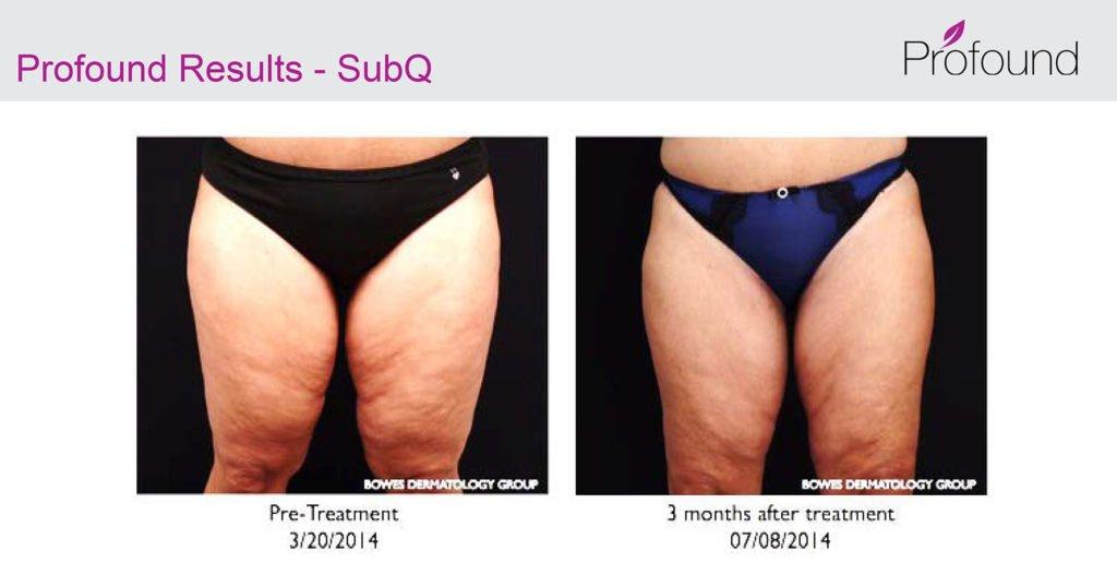 Profound Cellulite 1