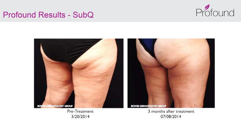 Profound Cellulite 3